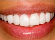 Teeth Whitening Services in Dallas TX – StewartHefton