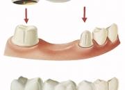 Get dental crown & porcelain veneers service in dallas tx at stewarthefton