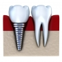 Get Dental Implant Dentistry in Dallas, TX 75230 - Stewarthefton