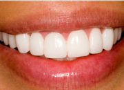 Teeth Whitening Services in Dallas TX – StewartHefton